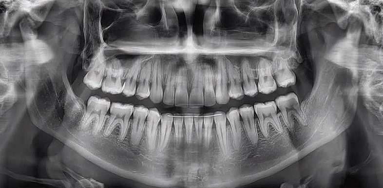 rtg zębów Toruń